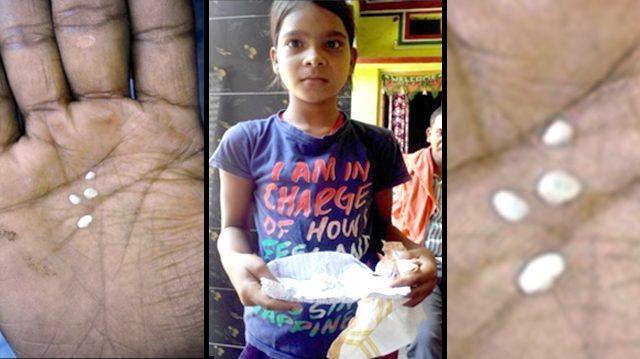 """La bambina indiana di 11 anni con dei """"campioni"""" delle sue lacrime di cotone."""