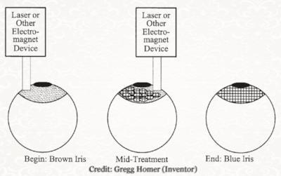 La procedura al laser