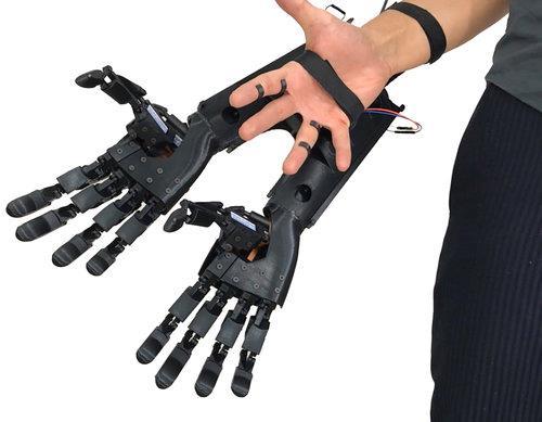 La doppia mano bionica della Youbionic
