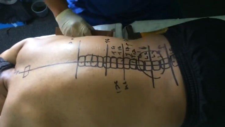 Il diagramma disegnato dal chiropratico
