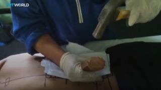 Il chiropratico si appresta a martellare il paziente