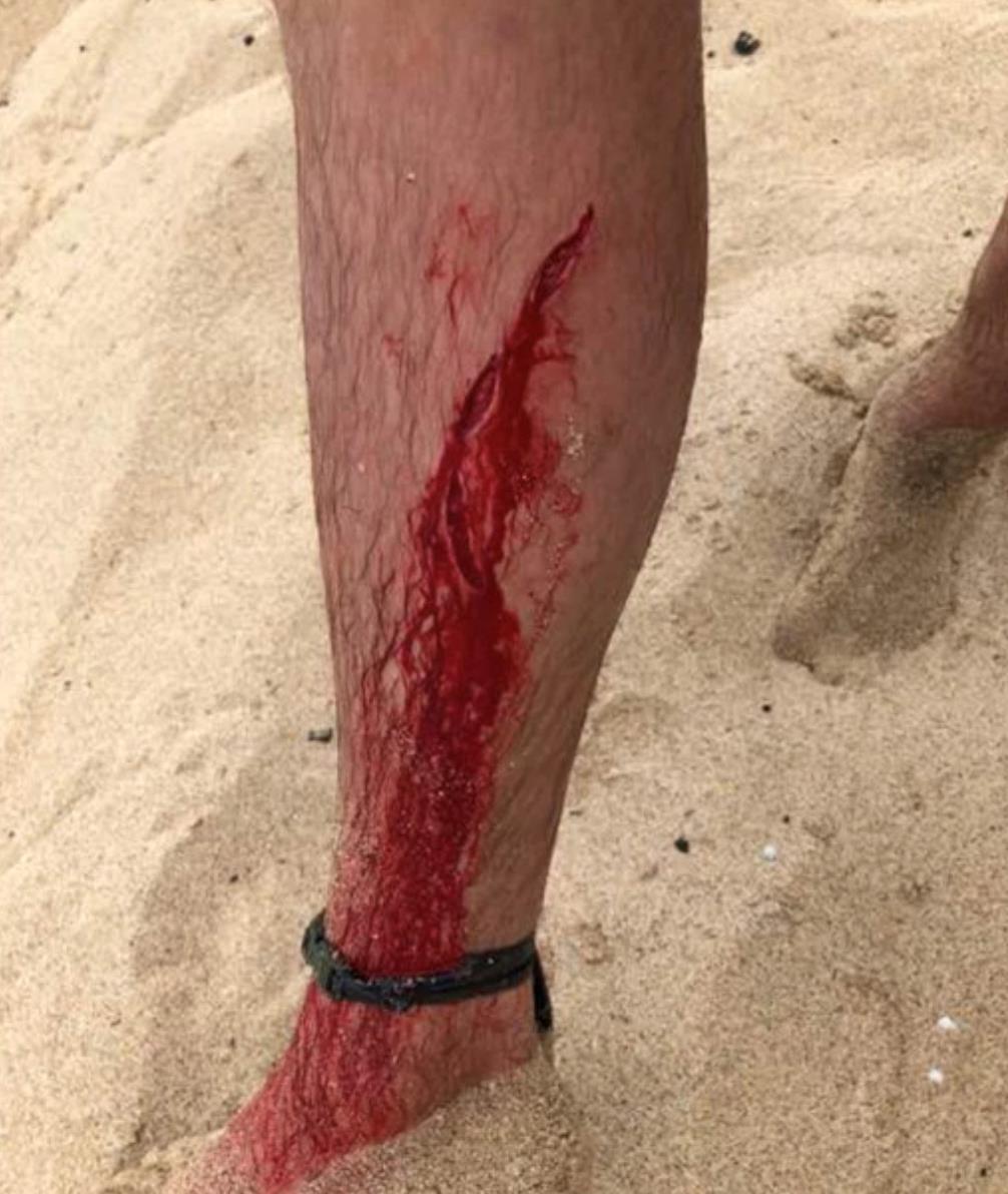 La ferita provocata dal morso dello squalo