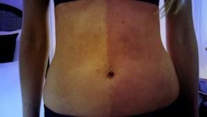 Lo stomaco di Taylor con due differenti tonalità
