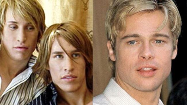 I 2 gemelli dopo l'operazione e Brad Pitt