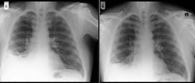 La radiografia dove si evidenzia la massa sospetta