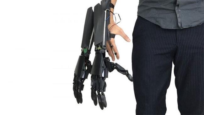 L'arto bionico di Youbionic