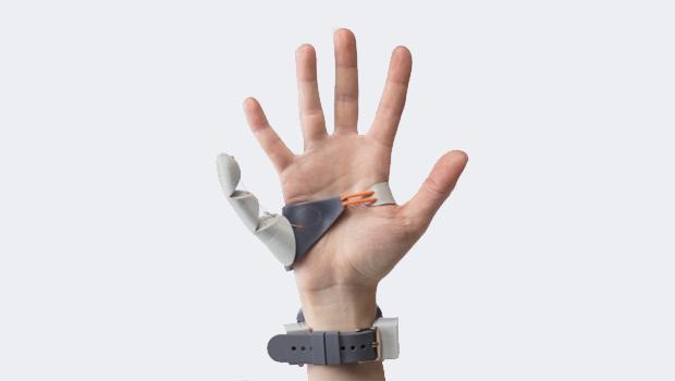 La protesi