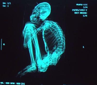 Uno degli scheletri alieni