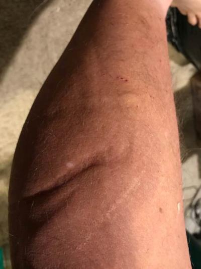 Le cicatrici che ha John sul corpo