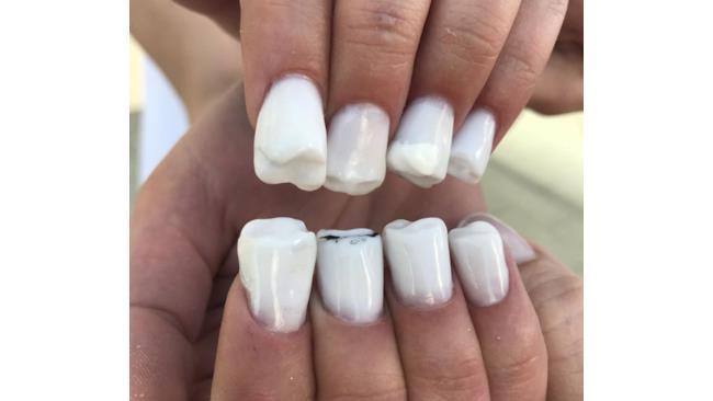 Ricostruzione di denti molari