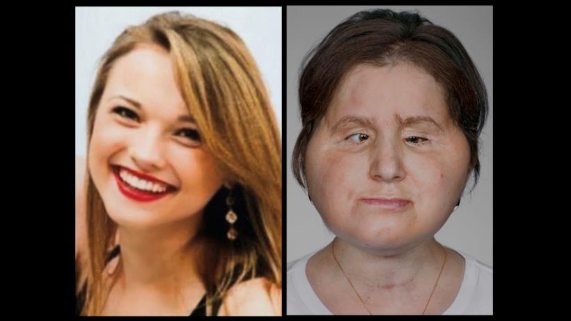 Katie Stubblefield prima e dopo il trapianto di volto