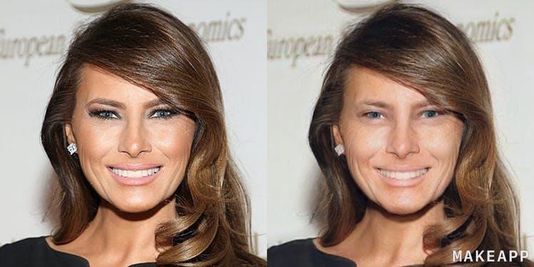 Melania Trump prima e dopo