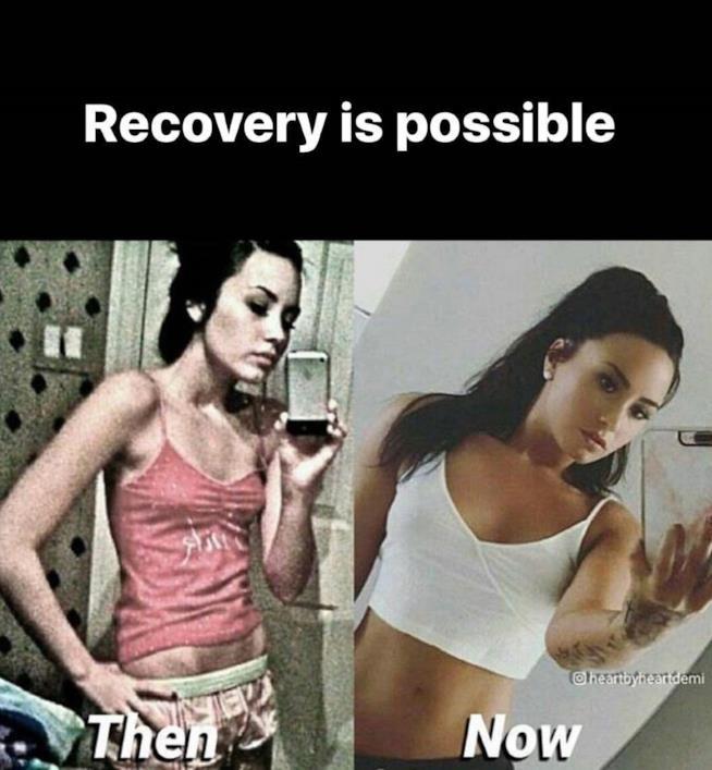 Demi Lovato, prima e dopo la bulimia