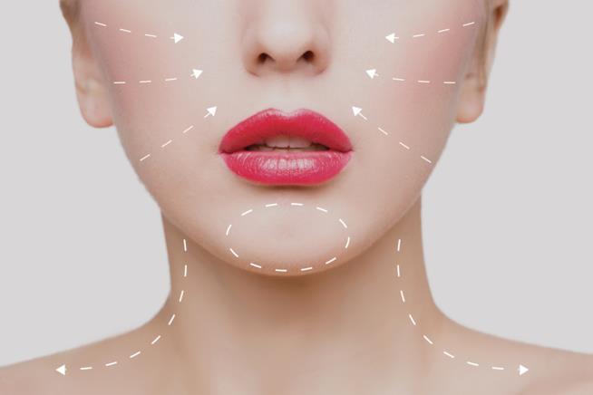 Una mappatura del viso da riempire con l'Acido ialuronico