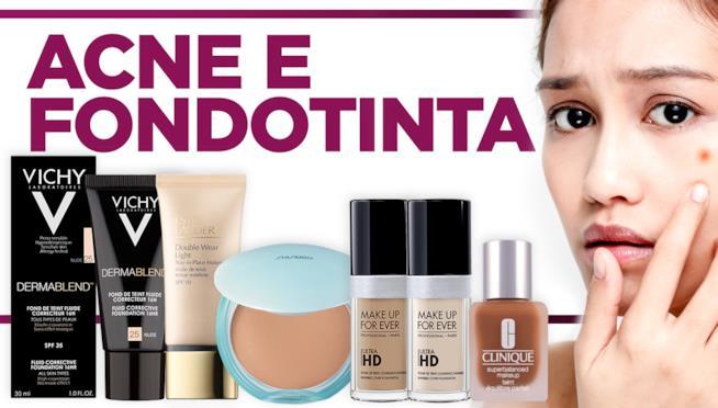 Una giovane donna con l'acne e i prodotti per minimizzarla