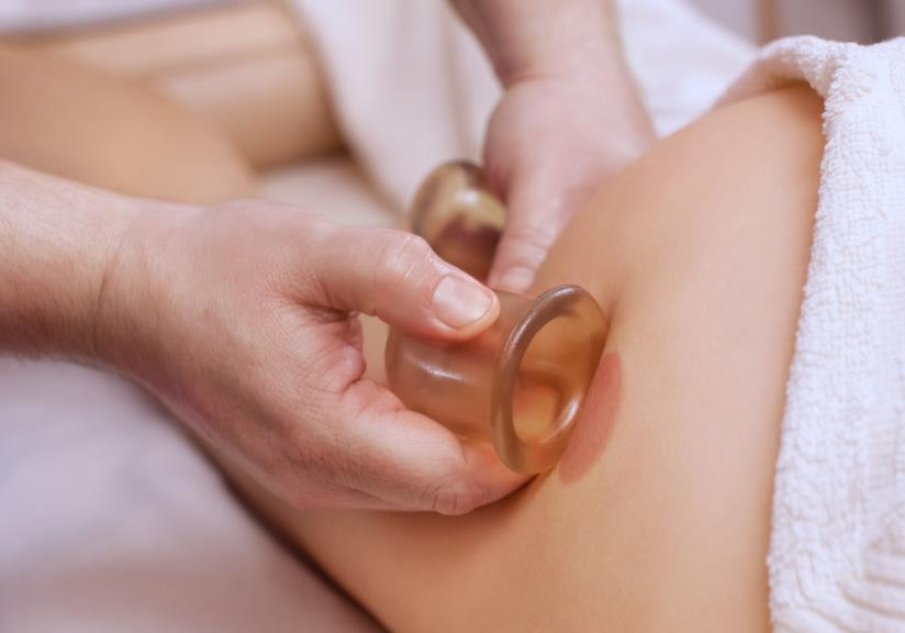 Massaggio con coppette anticellulite