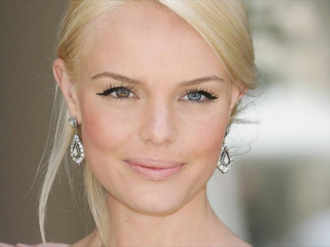 Kate Bosworth e la sua eterocromia
