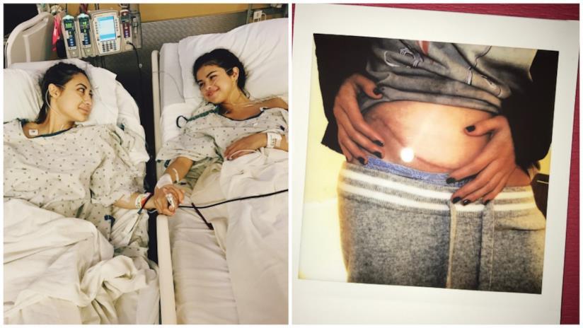 Selena Gomez dopo il trapianto di rene
