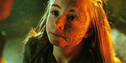Shireen Baratheon in primo piano con il morbo grigio in faccia