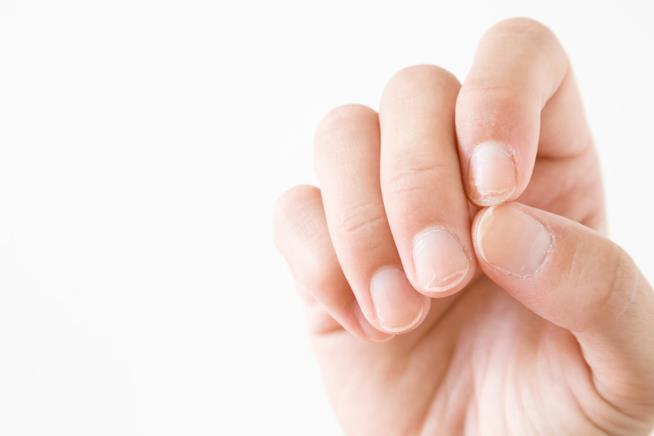 Mani con macchie bianche sulle unghie