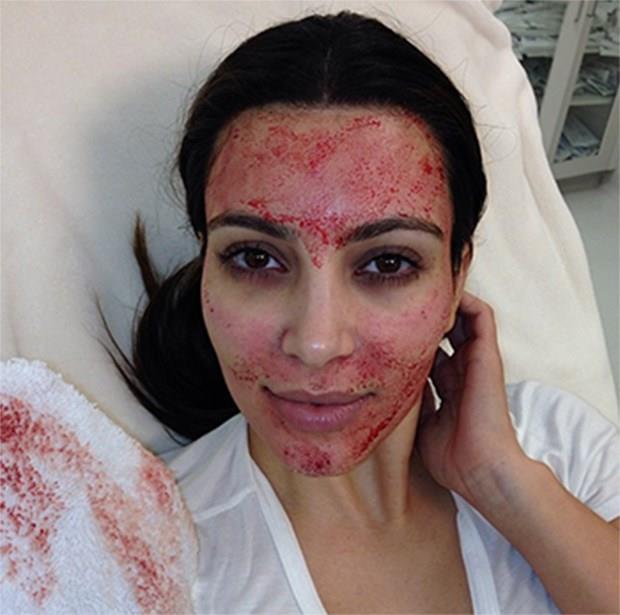 La maschera di bellezza con sangue di Kim Kardashian