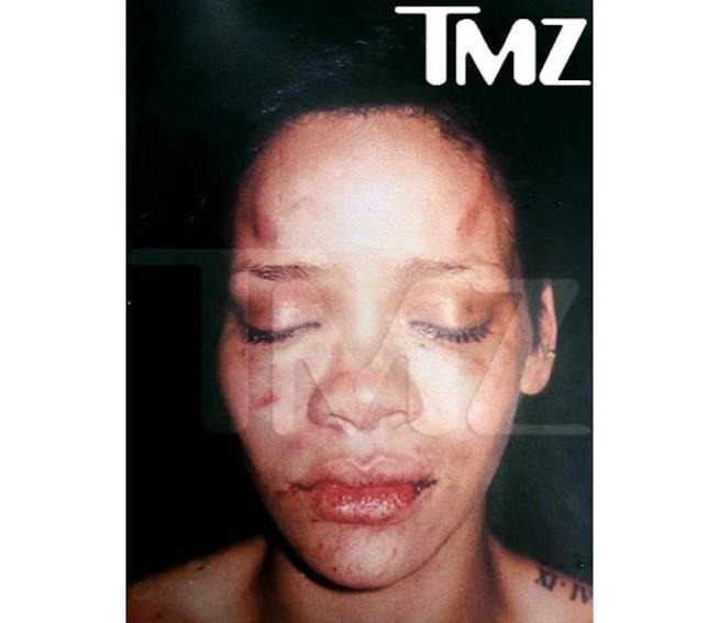 Il volto tumefatto di Rihanna