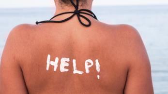 La foto di una ragazza con la schiena scottata dal sole