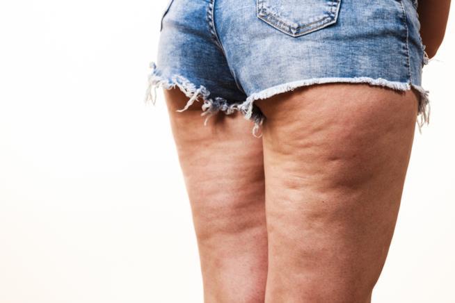 Cellulite come si forma