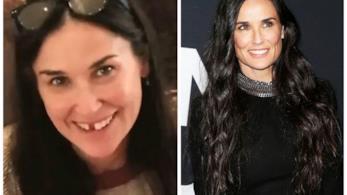 Demi Moore senza denti e dopo le protesi