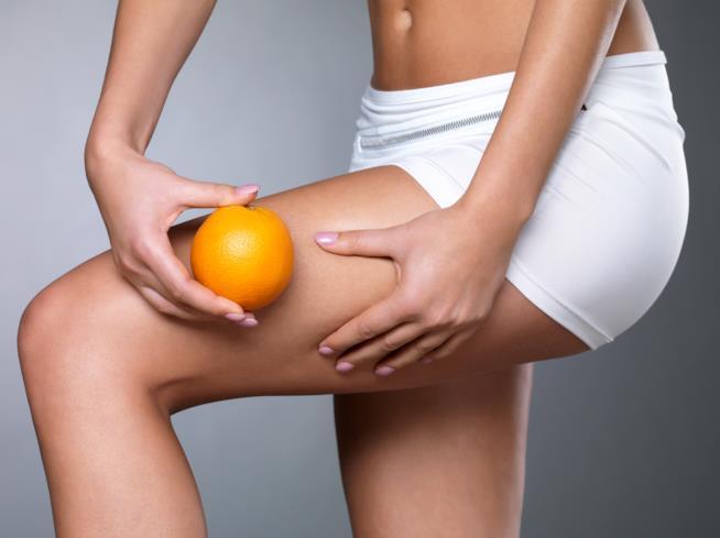 Cellulite: gli stadi