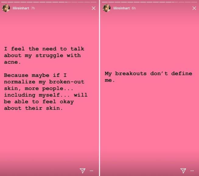 L'attrice Lili Reinhart  scrive su Instagram