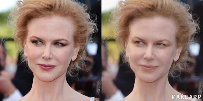 Nicole Kidman prima e dopo