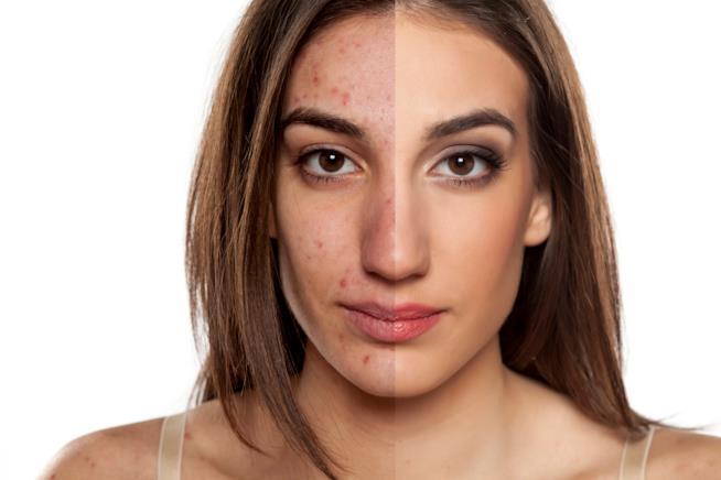 ragazza con pelle acneica