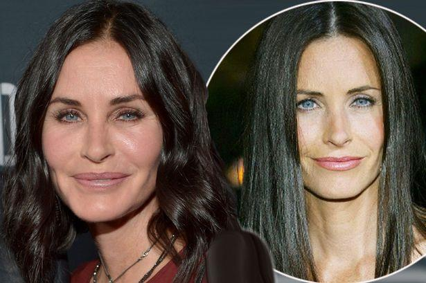 courtney cox botox prima dopo