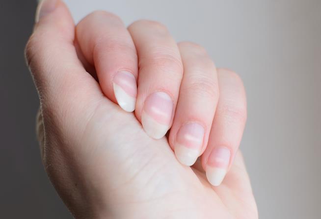 Unghie lunghe con macchie bianche