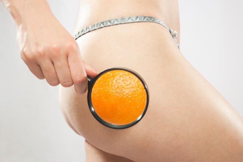 Cellulite  che cos'è e come si contrasta