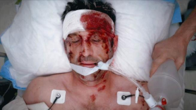 Grey's Anatomy Derek Shepherd ospedale ferito morente