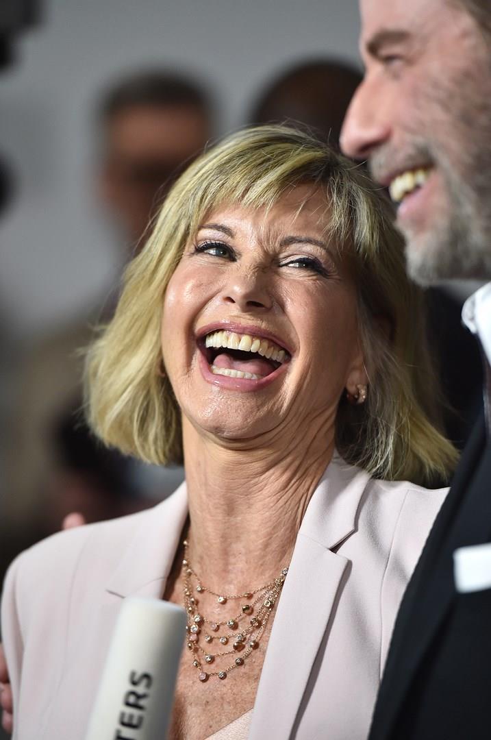 Gli attori John Travolta e Olivia Newton-John