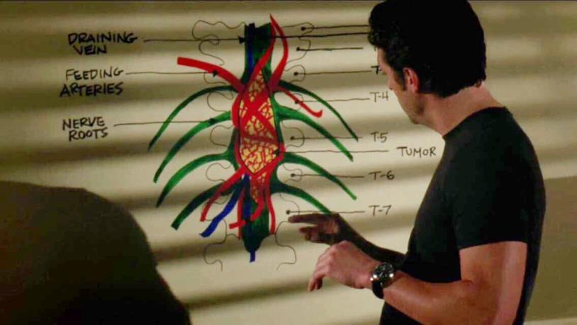 Derek Shepherd disegna il tumore sulla parete di Meredith
