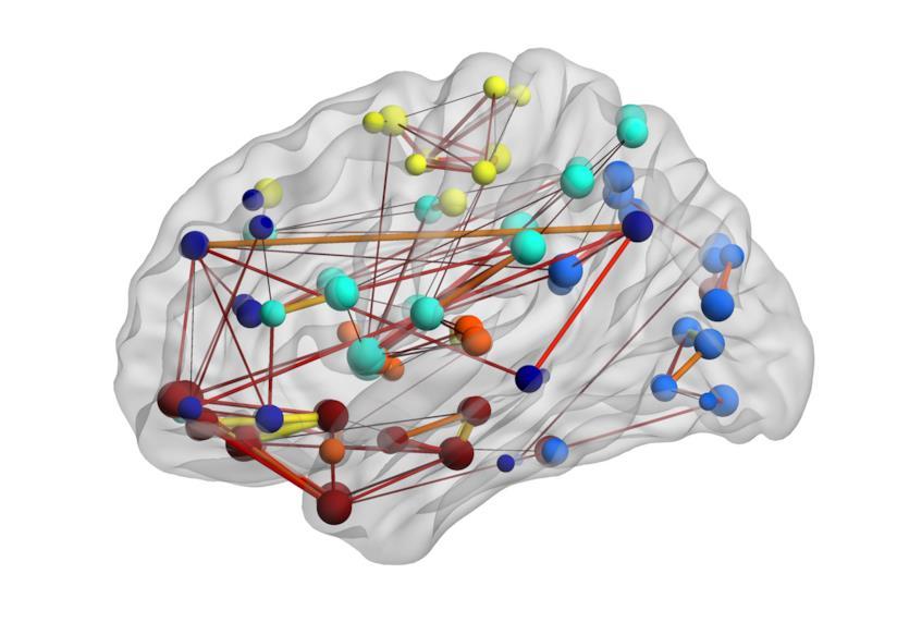 Modularità del cervello umano