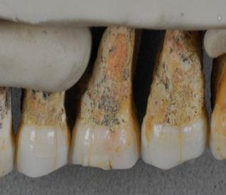 Un particolare dei denti dell'Homo luzonensis