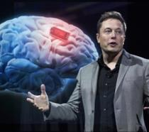 Elon Musk presenta il suo progetto targato Neuralink