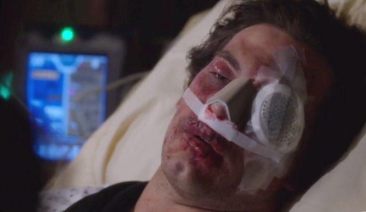 La faccia di Andrew DeLuca dopo che Karev lo ha picchiato