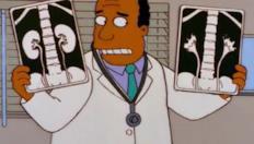 Homer Simpson in: problemi di reni