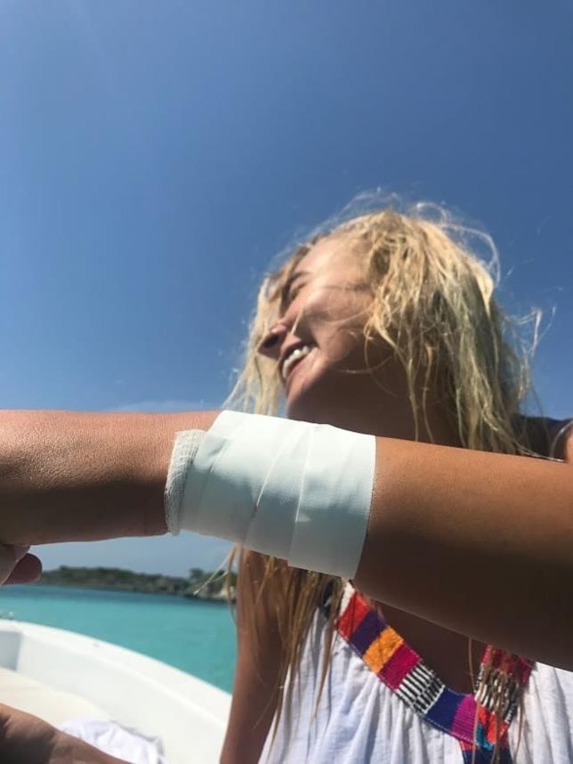 Il braccio fasciato della modella dopo il morso dello squalo