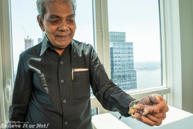 Il detentore del record per le unghie più lunghe del mondo