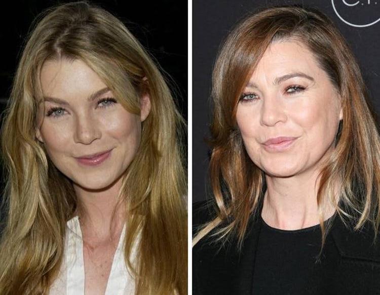 La famosa attrice prima e dopo