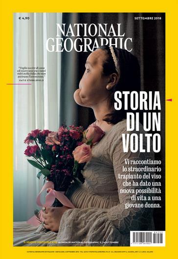 National Geographic magazine ha raccontato la storia di Katie